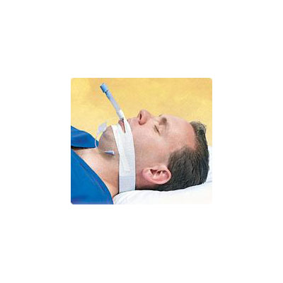 Trachtape Endotracheal Tube Securing Device